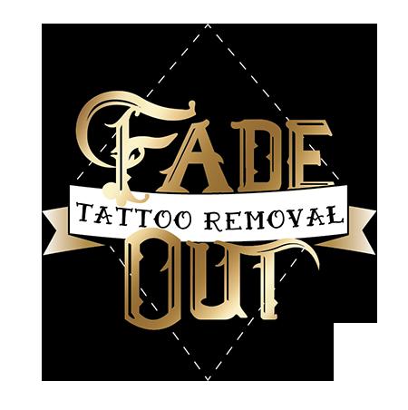 Tattoo Removal Oregon   Monolith Tattoo Studio Bend